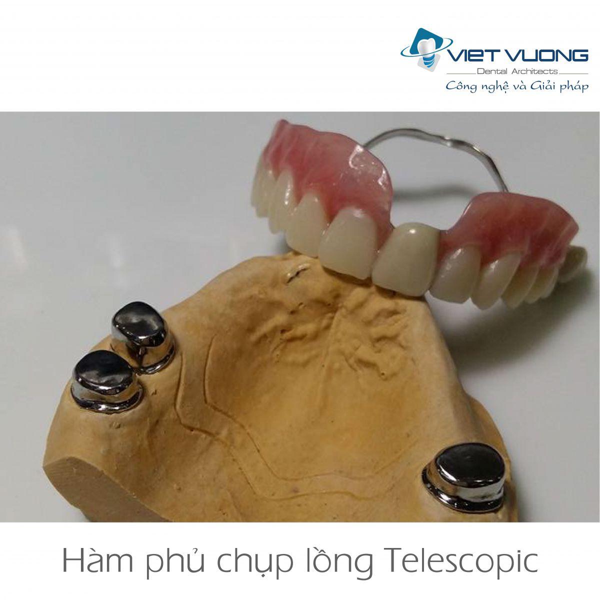 Hàm phủ chụp lồng Implant ( Telescopic )