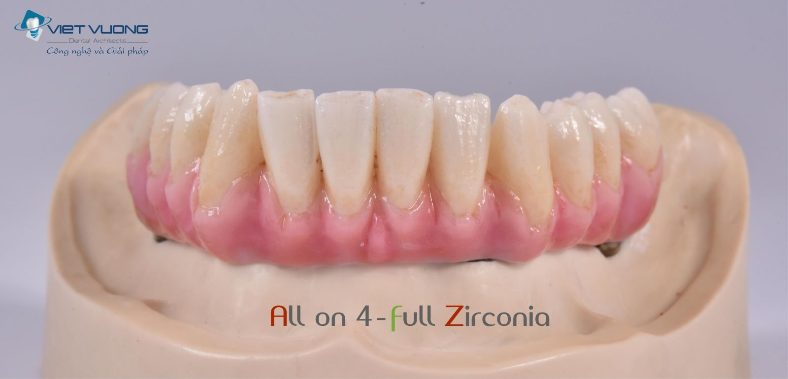 Sứ Zirconia trên khung sườn Peek ( All-on-4,6,8 )