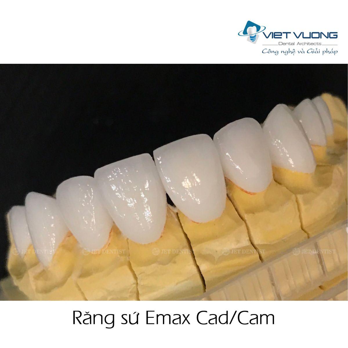 Răng sứ Emax Cad/Cam
