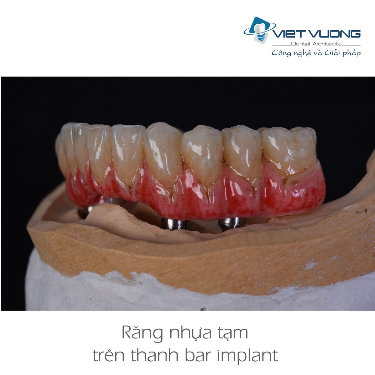 Răng nhựa trên thanh bar Implant