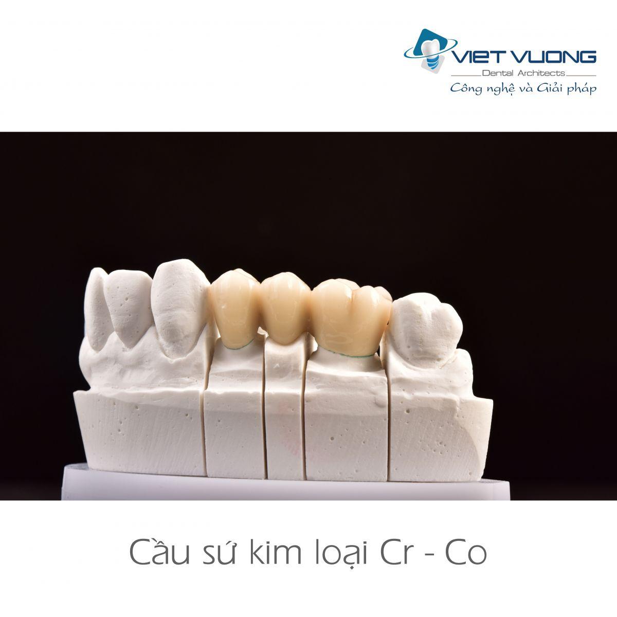 Răng Sứ kim loại Cr-Co