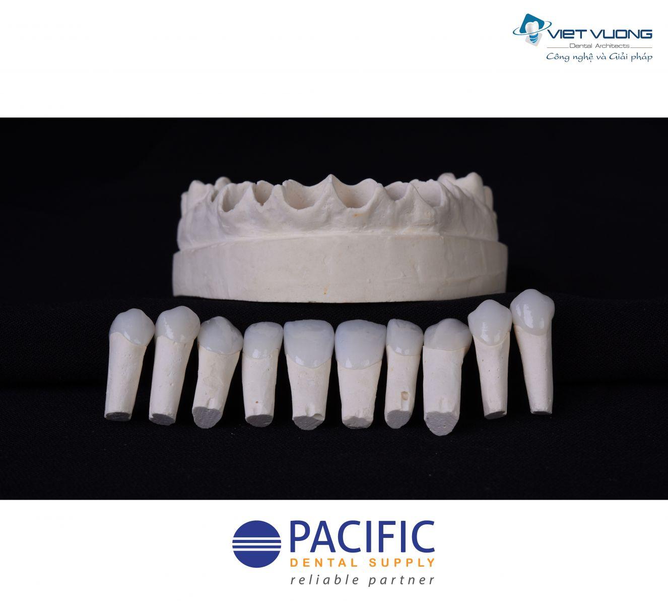 Răng sứ Zirconia – CAD/CAM CERAMILL