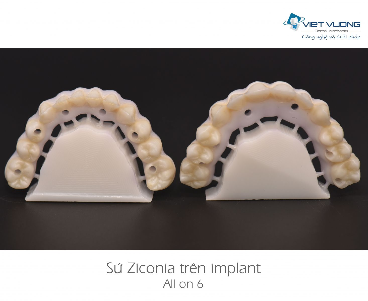 Sứ Zirconia trên Implant ( All-on-4,6,8 )