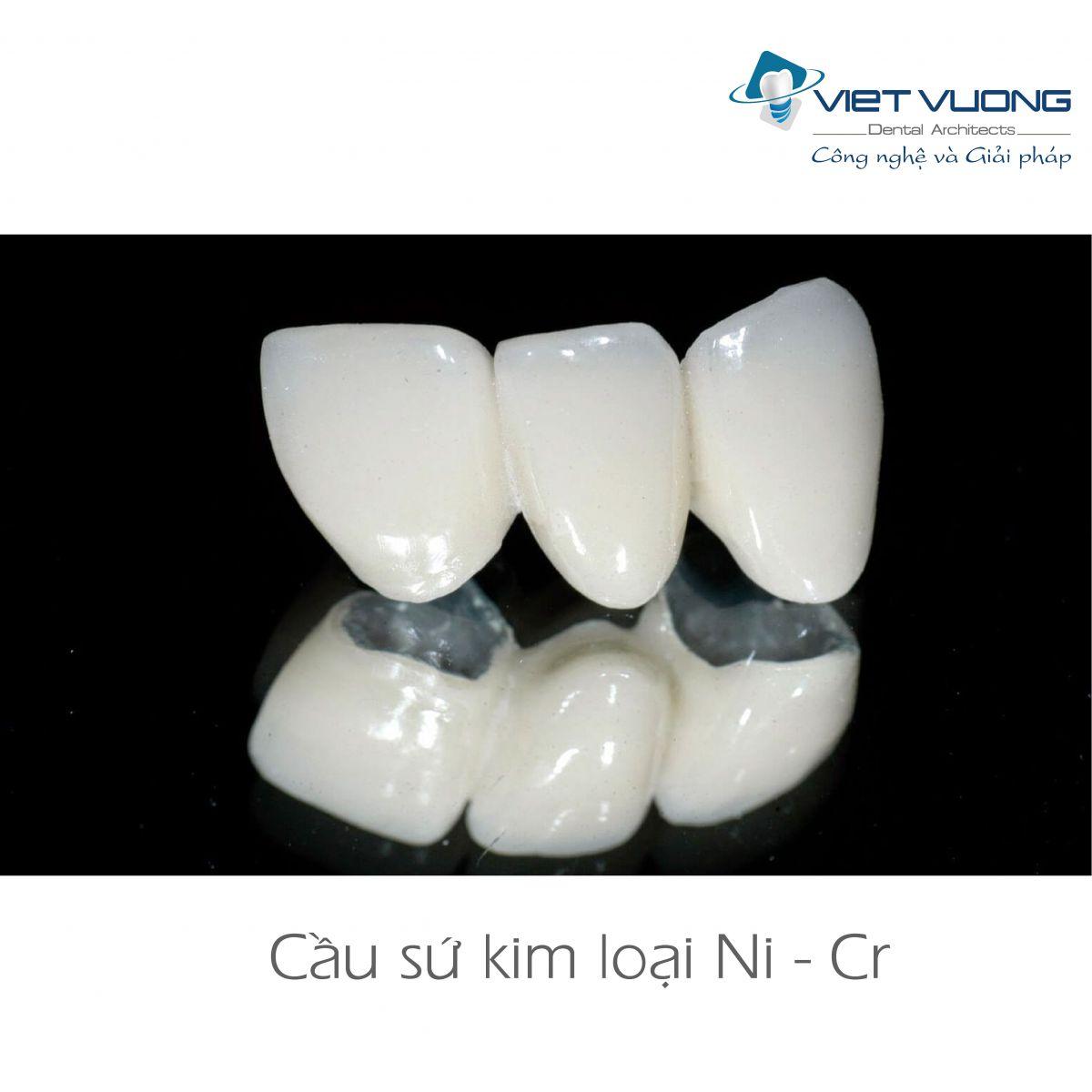Răng sứ kim loại Ni-CR ( Super-1 )