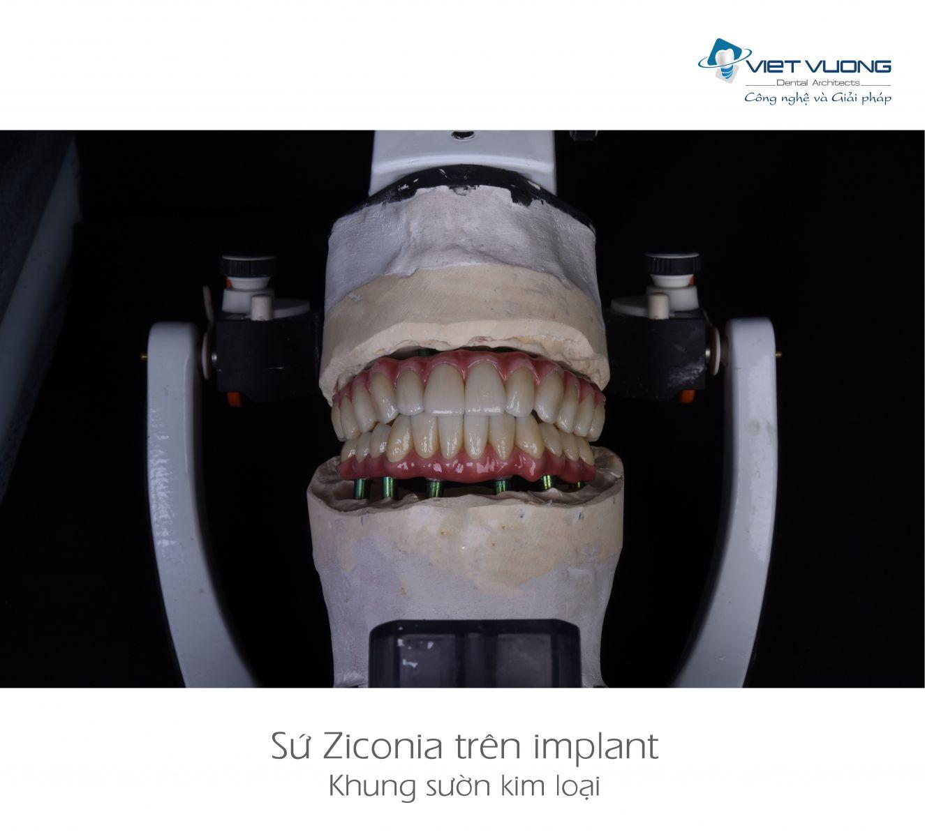 Sứ ziconia trên khung sườn kim loại ( All-on-4,6,8 )